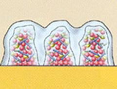 予防・歯周治療
