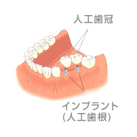 implant_hikaku1
