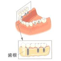 implant_hikaku2